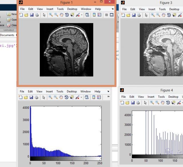 تعدیل هیستوگرام تصاویر پزشکی